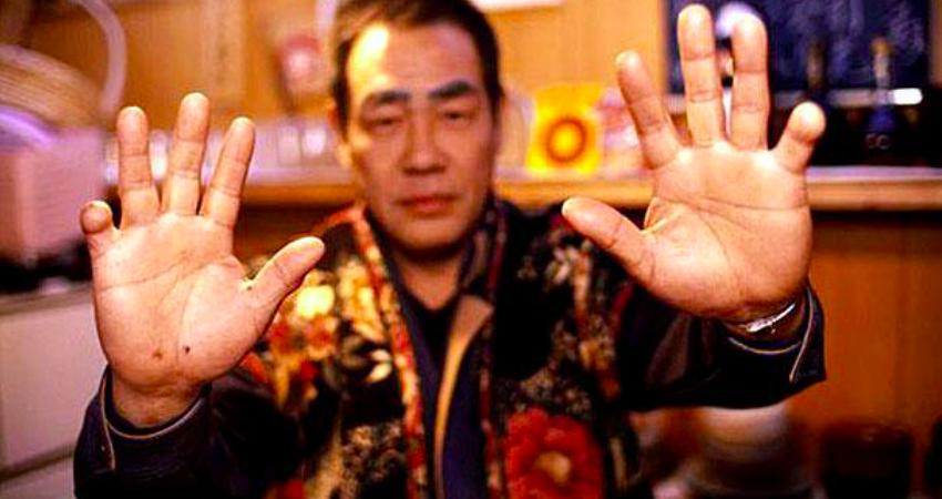 chặt ngón tay yakuza