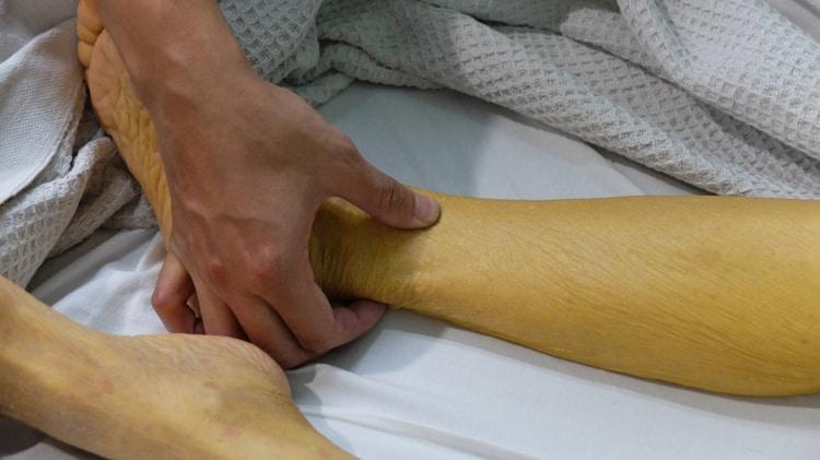 vàng da do bệnh men gan cao