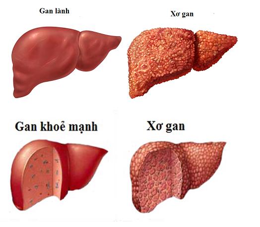 xơ gan do bệnh men gan cao