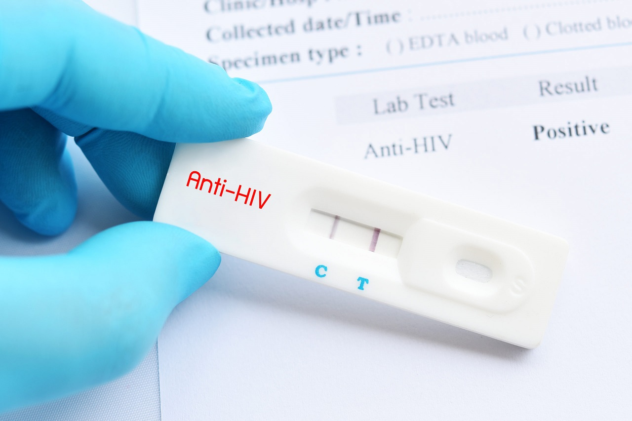 HIV là gì? Biểu hiện thường gặp, phương pháp chẩn đoán