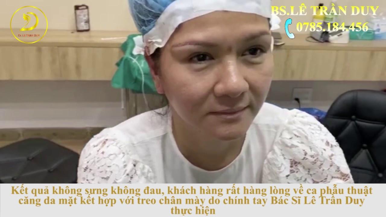 Top 10 địa chỉ phẫu thuật cắt mí đẹp, uy tín tại TPHCM