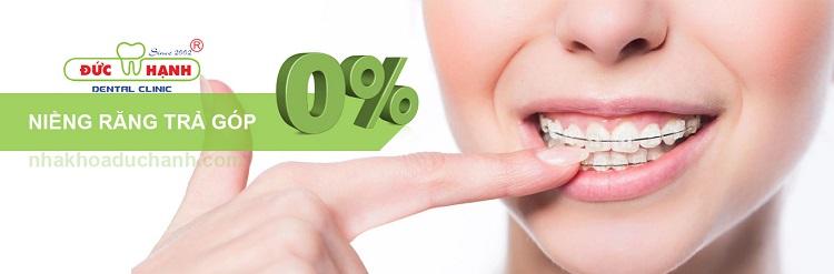 Niềng răng ở nha khoa Đức Hạnh
