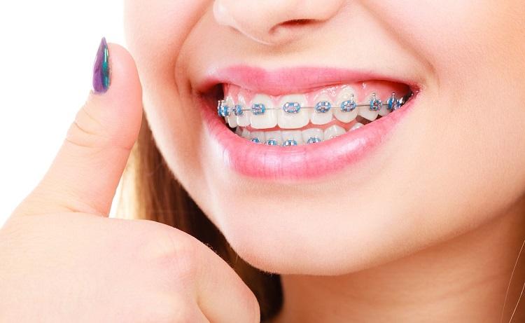 Niếng răng ở Nha Khoa Diamond