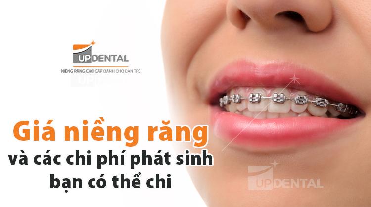Niềng răng tại Up Dental
