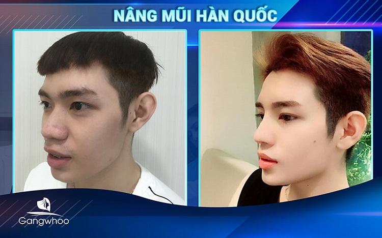 Nâng mũi cho nam giới tại Gangwhoo