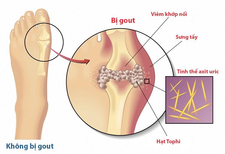 Đau nhức xương khớp có thể do bệnh gút