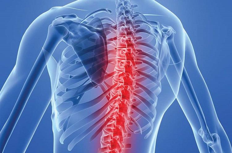 Bệnh lao xương khớp