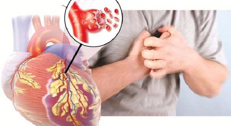 Bệnh tim dẫn đến đột quỵ não