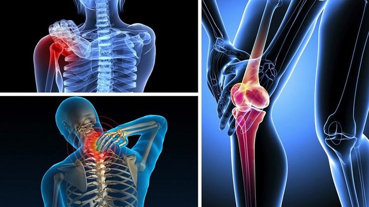 Đau nhức xương khớp ở người trẻ có thể cảnh báo nhiều vấn đề sức khỏe Dau-nhuc-xuong-khop-o-nguoi-tre-tuoi