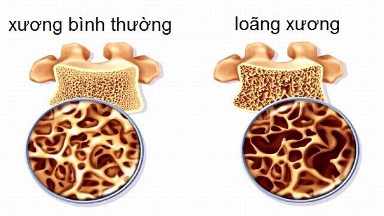 Đau nhức xương khớp toàn thân do loãng xương