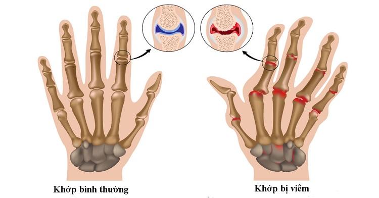 Đau nhức xương khớp do viêm khớp dạng thấp