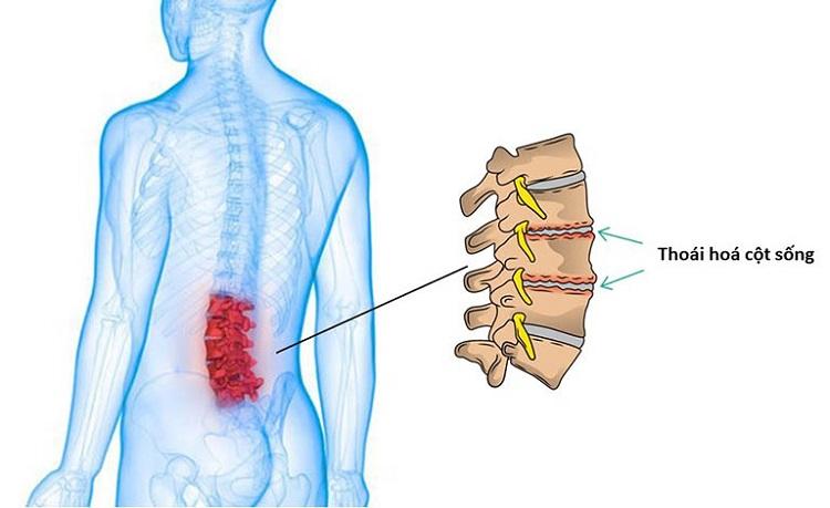 Đau nhức xương khớp do thoái hóa cột sống