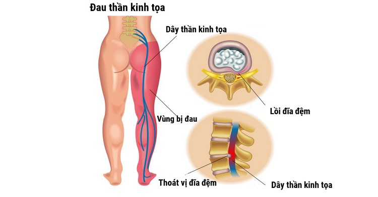 Đau nhức xương khớp do đau thần kinh tọa
